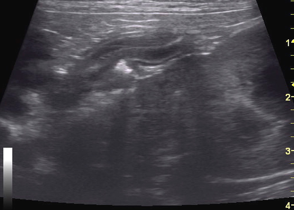 Small animal ultrasound - Bile duct obstruction